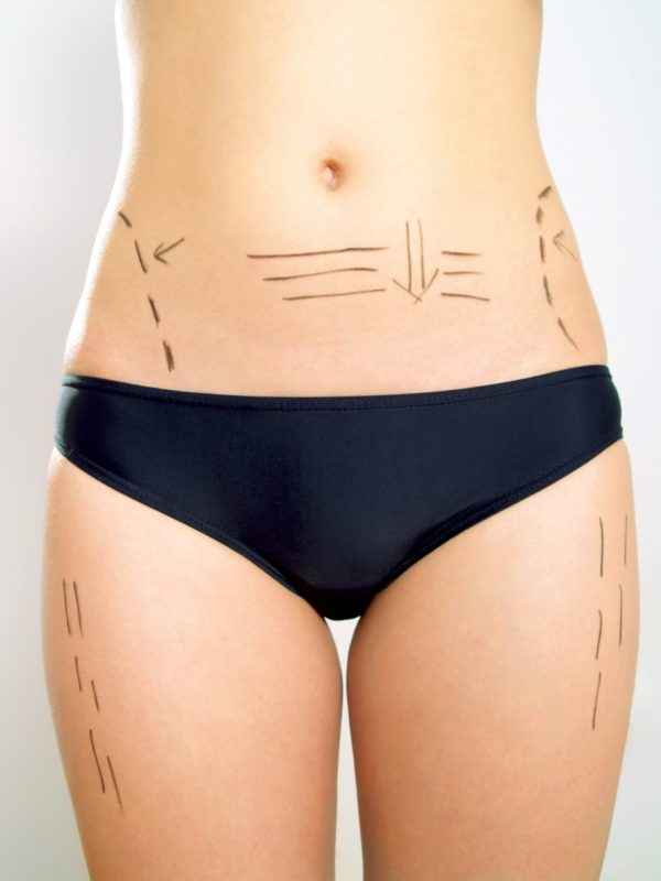 Canva Abdomen waist thigh marked for plastic surgery scaled